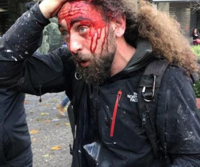 χτυπημένος δημοσιογράφος