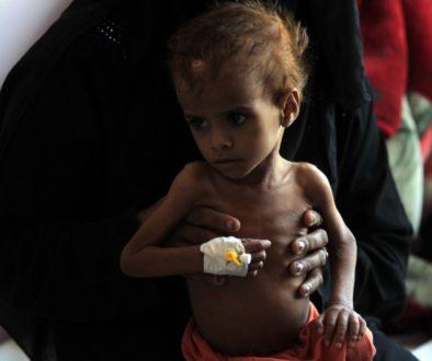 Υεμένη πείνα_yemeni-pina-limos