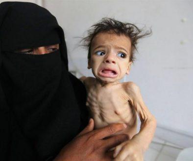 yemen-famine-580x460